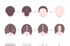 Male/ Female Hair Loss
