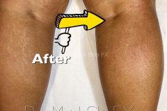 Stretch Mark Coverage Tattoo